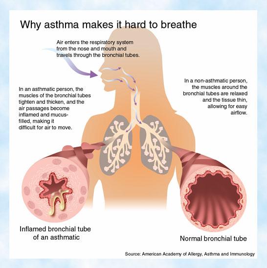 external image asthma.jpg